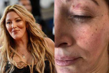 Loana : a été victime de violences conjugales par son compagnon Fred Cauvin !