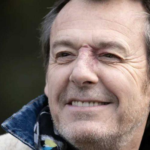 Jean-Luc Reichmann en grande difficulté, il est inquiet pour ses poumons