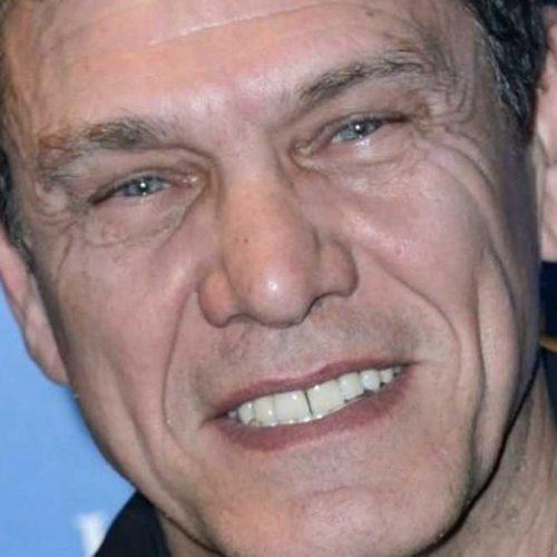 Marc Lavoine : certains l'accusent d'abuser de la chirurgie esthétique, il répond aux attaques !
