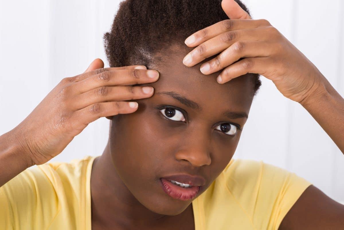 Dites adieu aux acnés avec ce remède miracle qui a fait ses preuves au fil du temps !