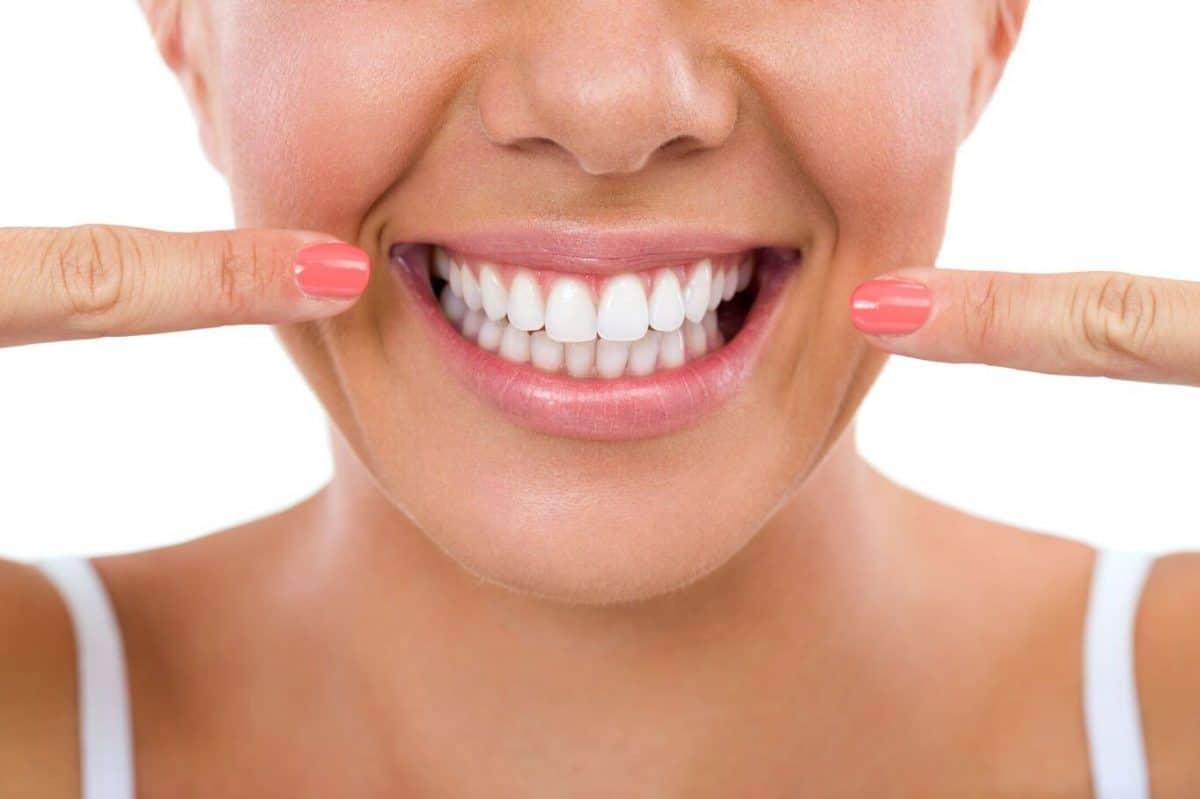 Blanchiment des dents :