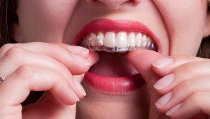 Dans quels cas avez-vous besoin d'utiliser les gouttières dentaires?