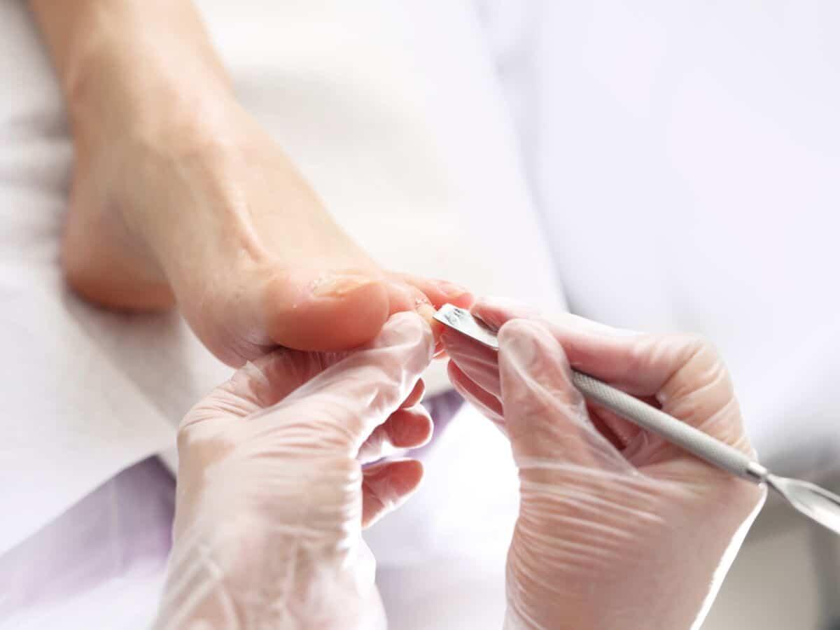 Médecine douce : voici comment traiter naturellement les mycoses du pied!
