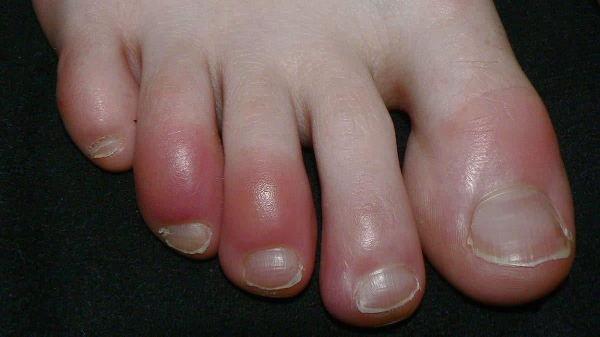 Symptômes de la cvid-19 : les orteils bleus sont effectivement un signe de l'infection à la COVID